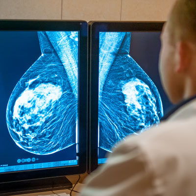 Image for The Weekly: Breast health, throat cancer prevention and more