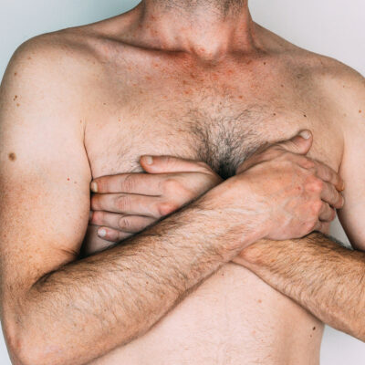 Image for The Weekly: A journey with male breast cancer, melanoma stories, community grants, and more