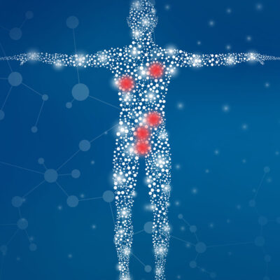 Image for The Weekly: Multi-cancer early detection testing leaps forward